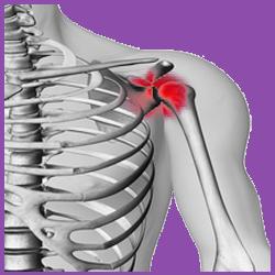 Ejercicio 6: Prevención para el dolor de hombro